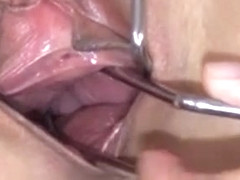 Gyno Hole Deeply Opened For You