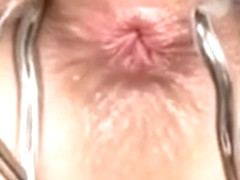 Closeup of a chicks butthole and getting it probed by a doc